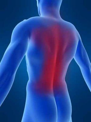 Back Posture in Relation to Shoulder Pain